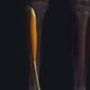 前脛骨筋の機能解剖、起始・停止・作用まとめ