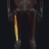 中殿筋の機能解剖、起始・停止・作用まとめ